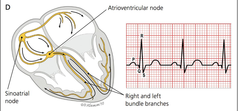 Learning EKG (for IM residents) - IM Reference