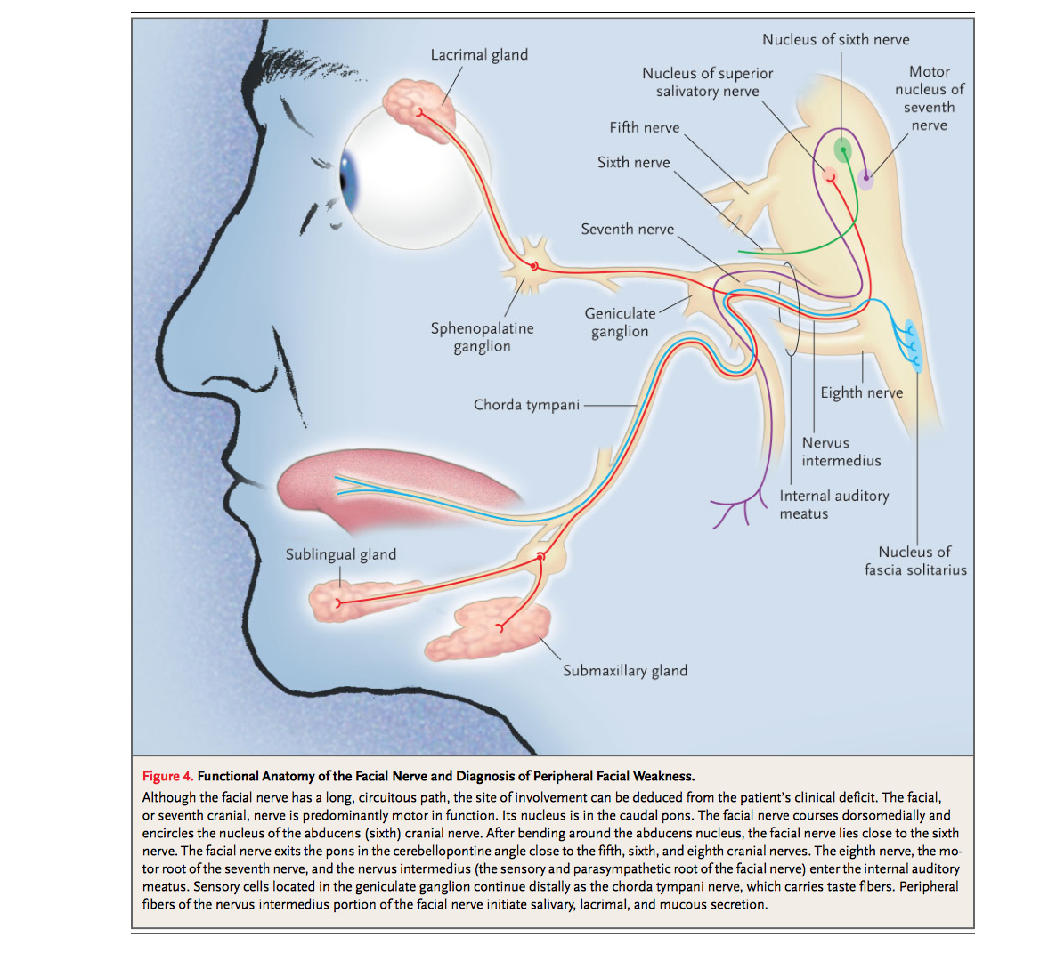 Cranial Nerve Lesion - IM Reference
