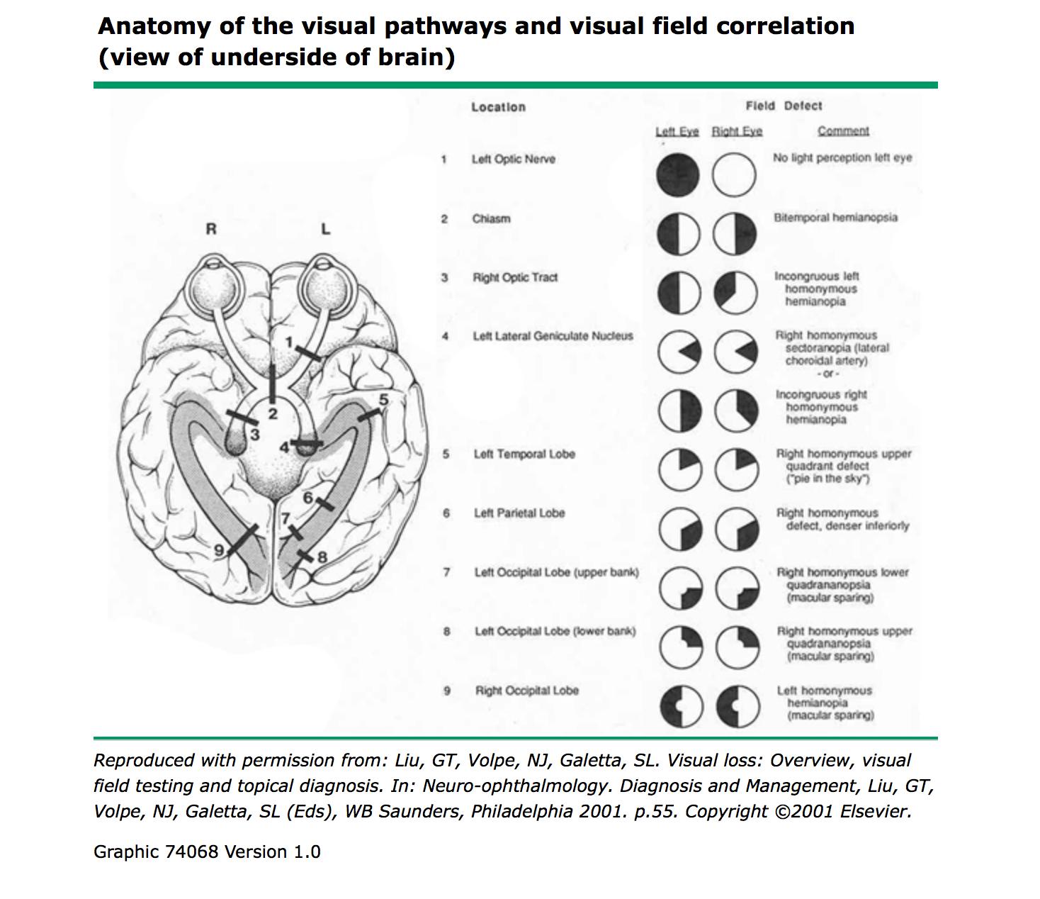 1st: DDx of visual symptoms