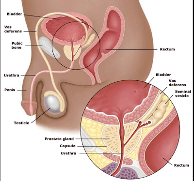 Prostrate Cancer And Screening Testicular Cancer Im Reference