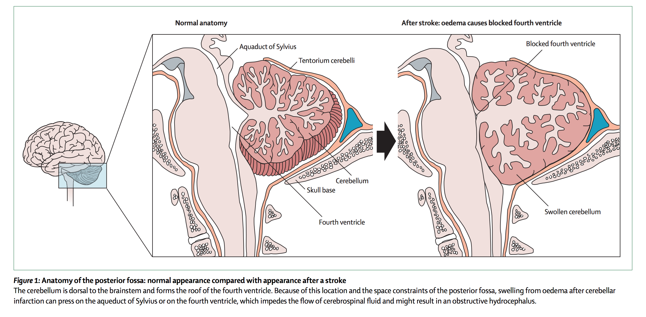 Posterior Circulation Stroke - IM Reference
